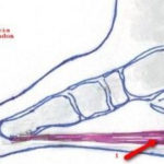 heelp pain